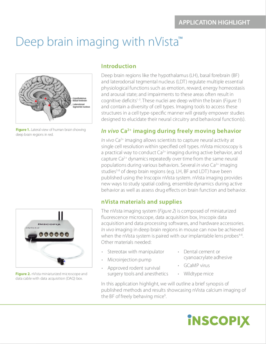Deep brain imaging with nVista.png