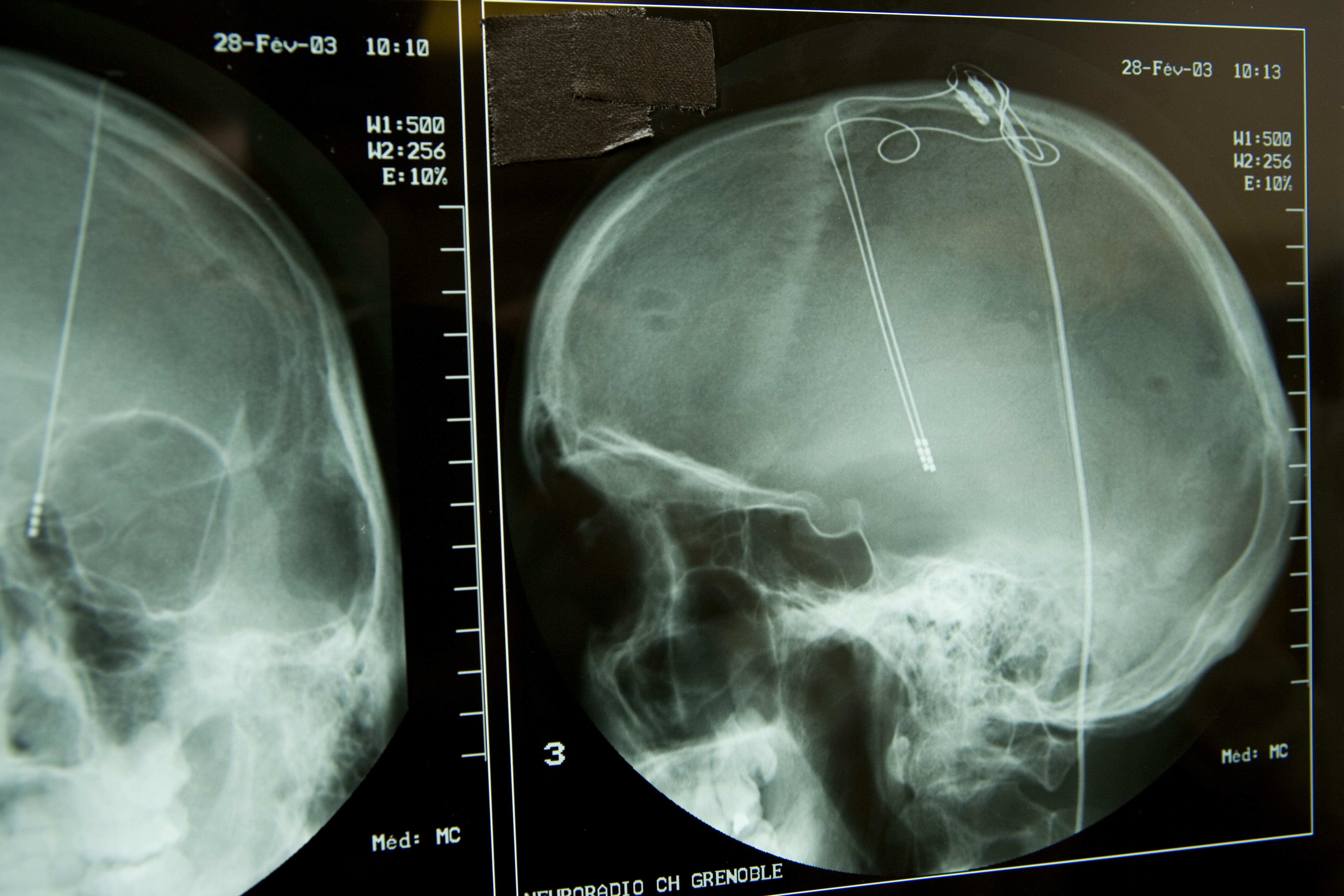 035236950-brain-electrostimulation-x-ray.jpeg