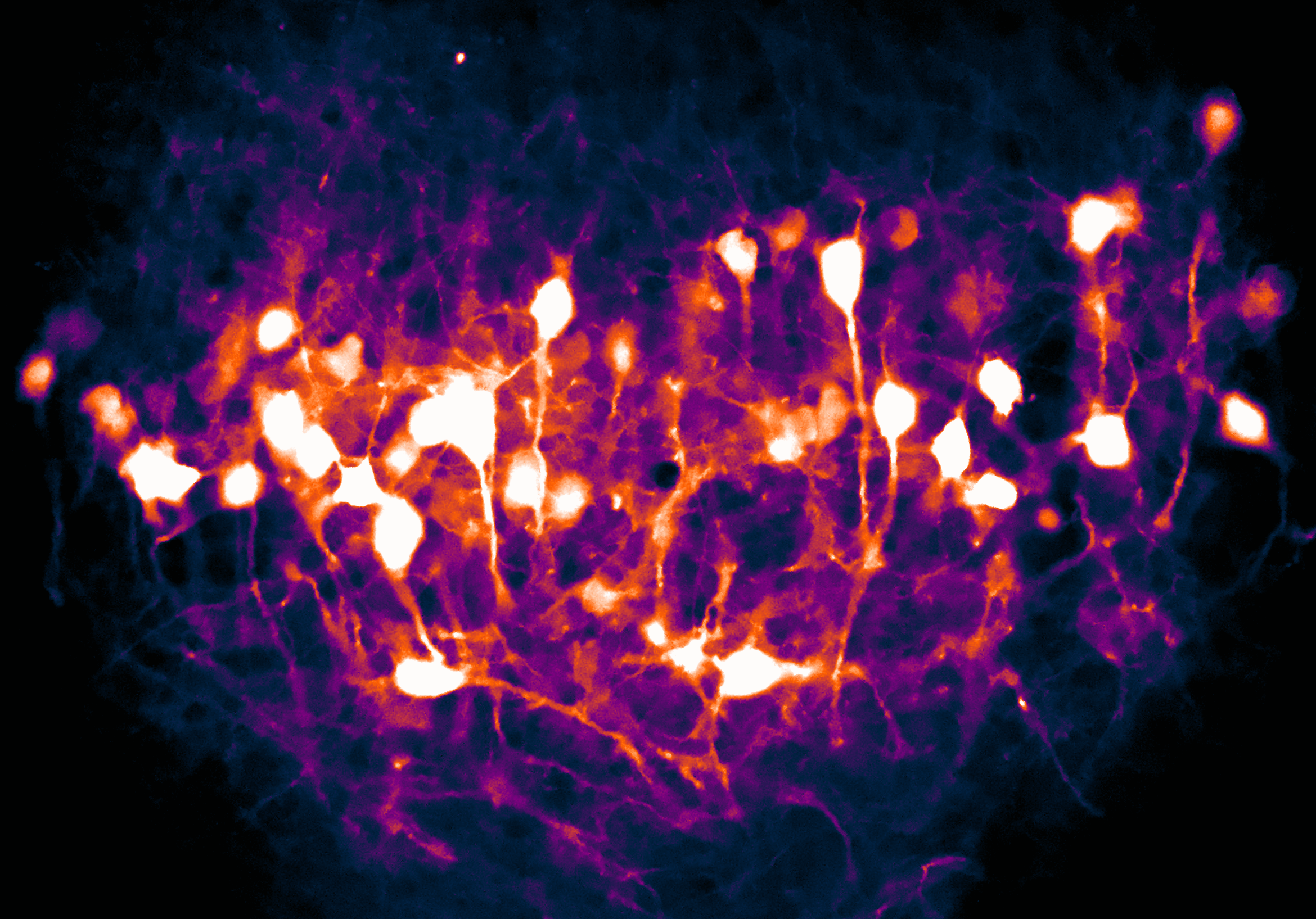 vCA1-LHA projecting neurons- color changed