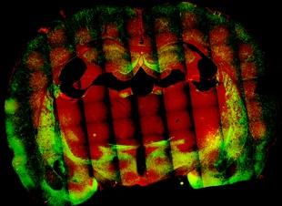 brain-image_310x226
